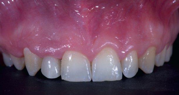 Всеобъемлющая реабилитация и обеспечение естественной эстетики с помощью комплексного, имплантологическо-ортодонтического лечения (CRANIO): междисциплинарный подход к замещению утраченных латеральных резцов