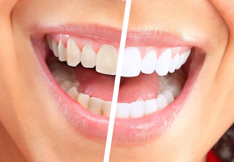 Отбеливание зубов в ортодонтии: последний штрих
