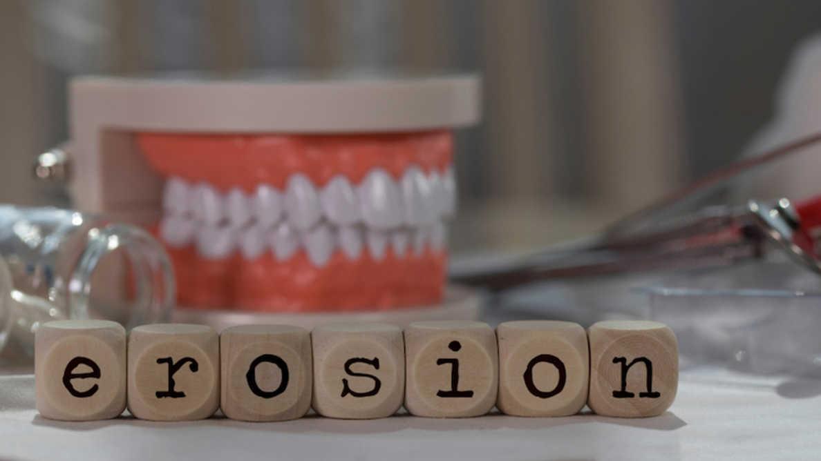 Исследователи выяснили, что датские стоматологи знают об эрозии