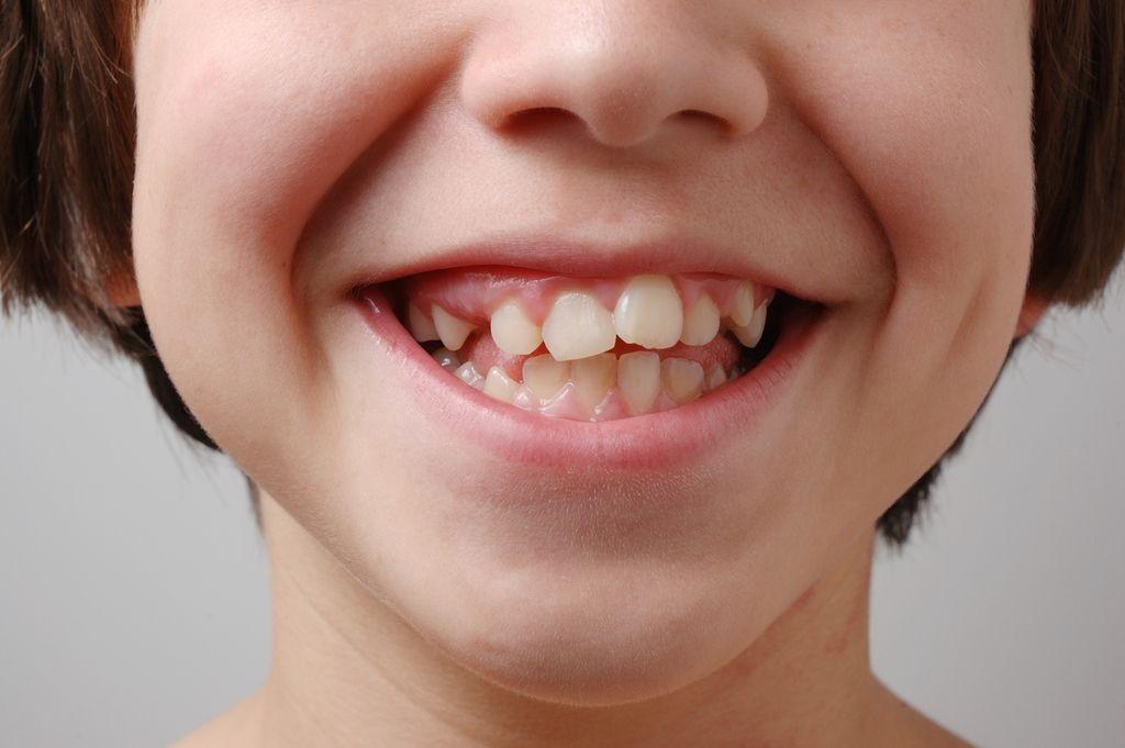 Лечение сильной скученности с применением циклических нагрузок и кортикотомии без удаления зубов
