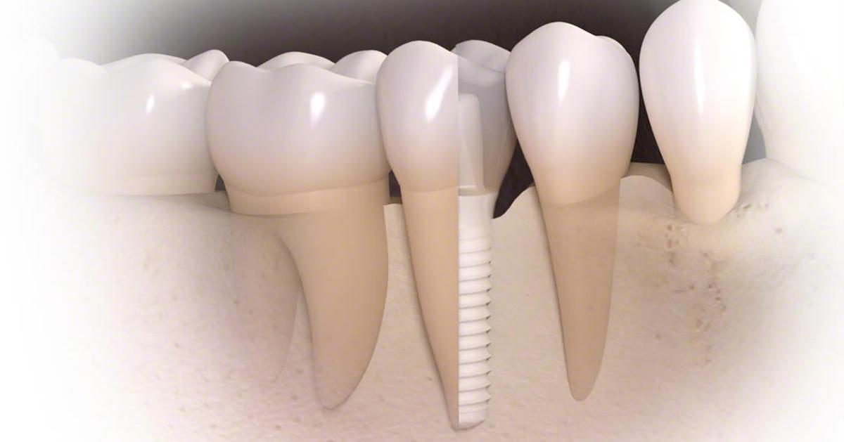 Замещение зуба с помощью монолитного циркониевого имплантата