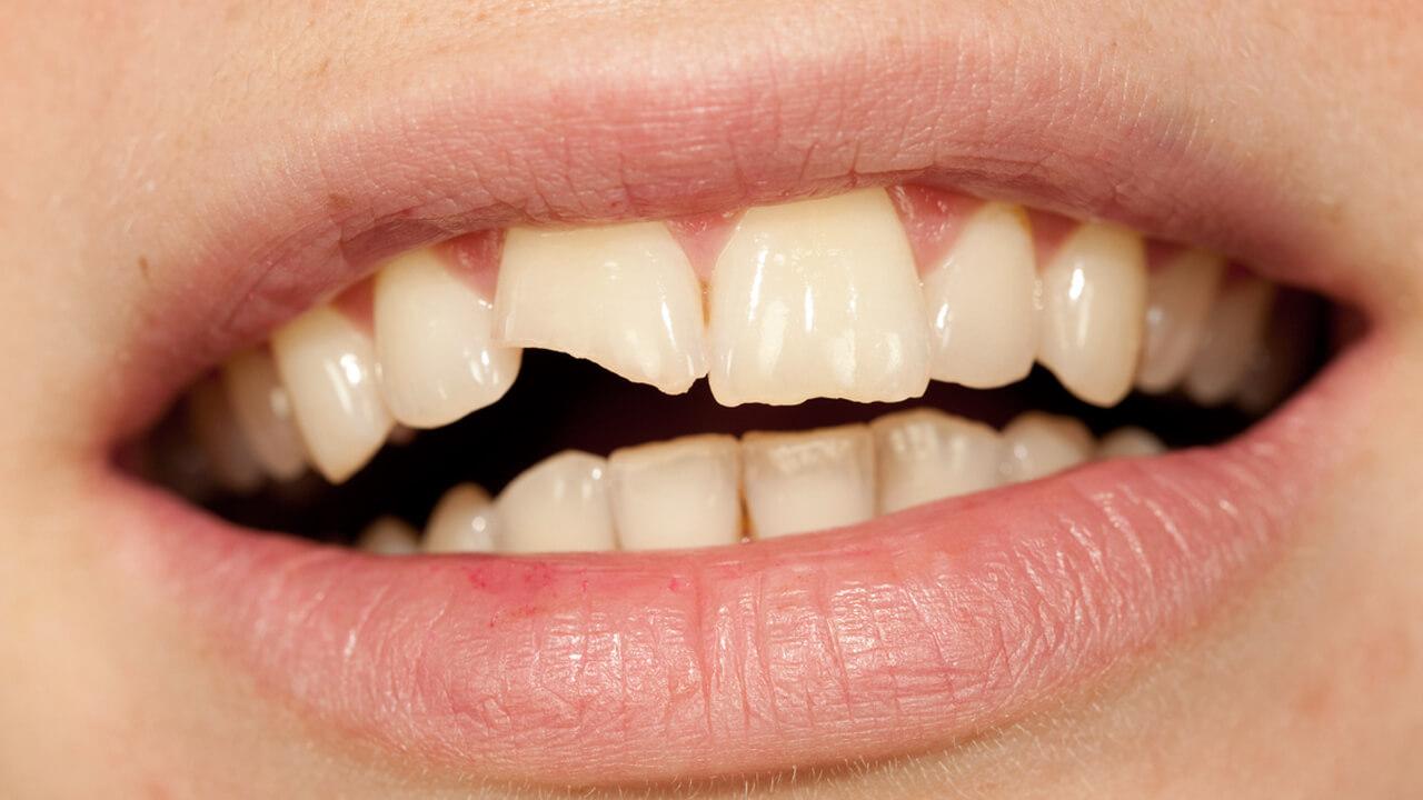 Быстрое, функциональное и эстетичное замещение травмированного фронтального зуба